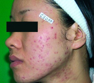 Acne_before1