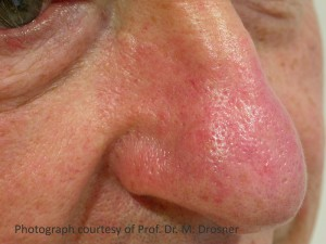 Rosacea_after1