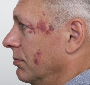 Vascular face before-1